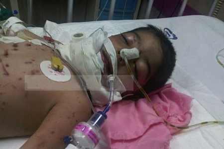 گرگ به کودک 3 ساله سنقری - حمله گرگ به کودک 3 ساله سنقری (عکس+گزارش کامل)