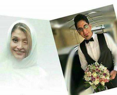 ازدواج مرضیه ابراهیمی قربانی اسیدپاشی در اصفهان