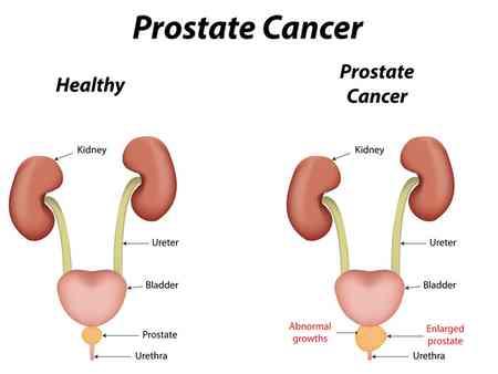 درمان پروستات بزرگ شده (1)
