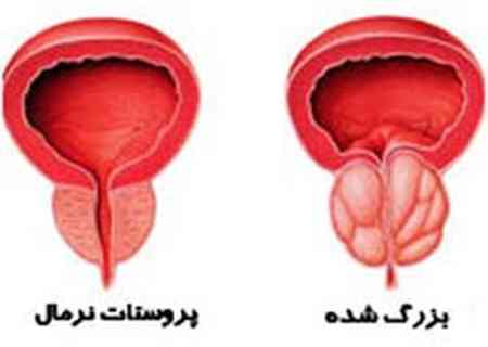 درمان پروستات بزرگ شده (2)