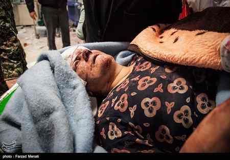 عکس های مصدومان و زخمی شدگان زلزله کرمانشاه پاییز 96 (21)