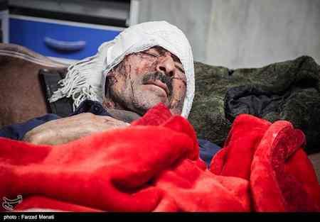 عکس های مصدومان و زخمی شدگان زلزله کرمانشاه پاییز 96 (26)