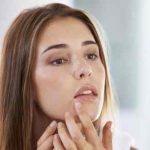 از بین بردن جوش صورت در یک روز بصورت طبیعی