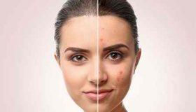 درمان جوش بعد از موم انداختن صورت با روش های ساده (2)