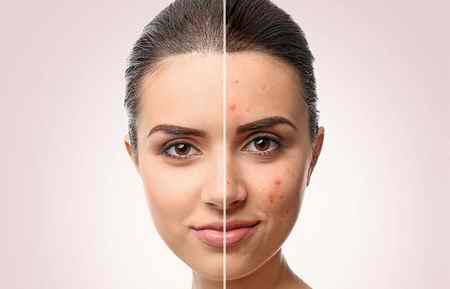 درمان جوش بعد از موم انداختن صورت با روش های ساده 2 درمان جوش بعد از موم انداختن صورت با روش های ساده