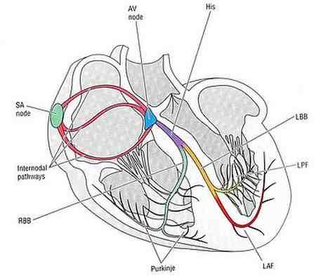 آریتمی سینوسی چیست 1 آریتمی سینوسی چیست