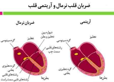 آریتمی سینوسی چیست 3 آریتمی سینوسی چیست