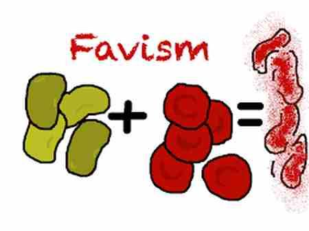 بیماری فاویسم چیست و معرفی علائم آن (1)