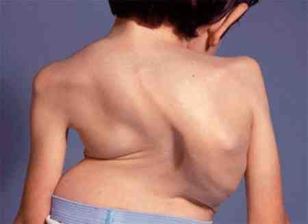 بیماری مورکیو چیست