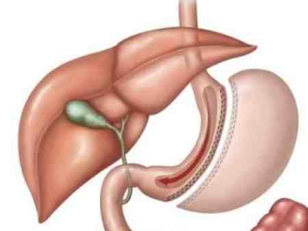 جراحی اسلیو معده چیست 3 جراحی اسلیو معده چیست