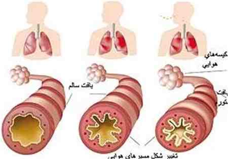 درمان آسم با داروهای گیاهی 4 درمان آسم با داروهای گیاهی