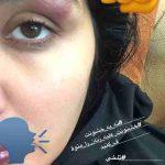 ماجرای حمله به مریم معصومی در خیابان