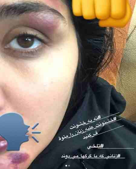 ماجرای حمله به مریم معصومی در خیابان ماجرای حمله به مریم معصومی در خیابان