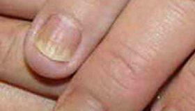 دلیل پوسته شدن کنار ناخن ها چیست