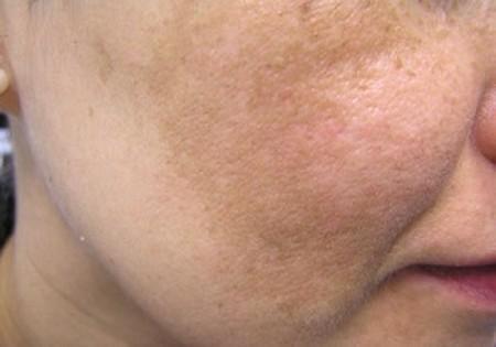 علت تیرگی پوست صورت
