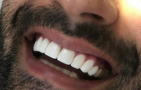 اولین دندان دائمی در چه سنی می روید