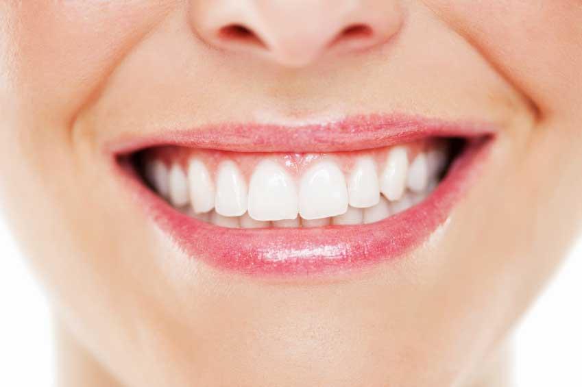 7 راه سفید کننده دندان