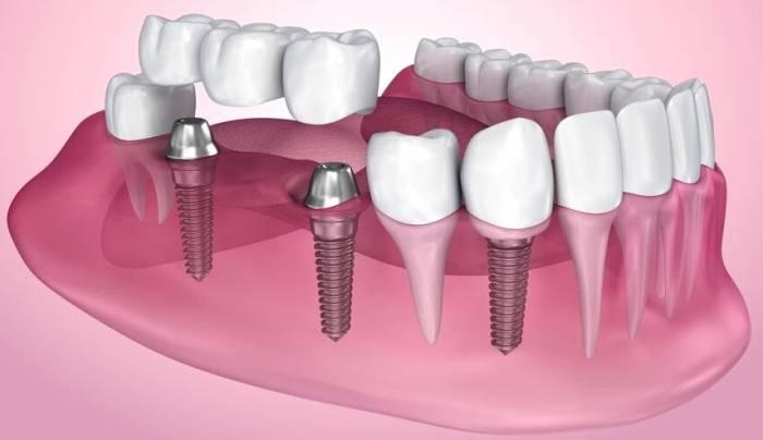 ایمپلنت کاشت دندان