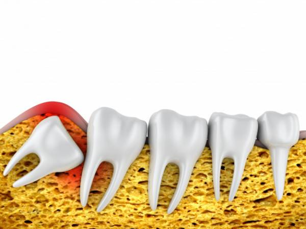 عوارض دندان عقل