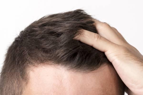 رشد مجدد مو با ماینوکسیدیل