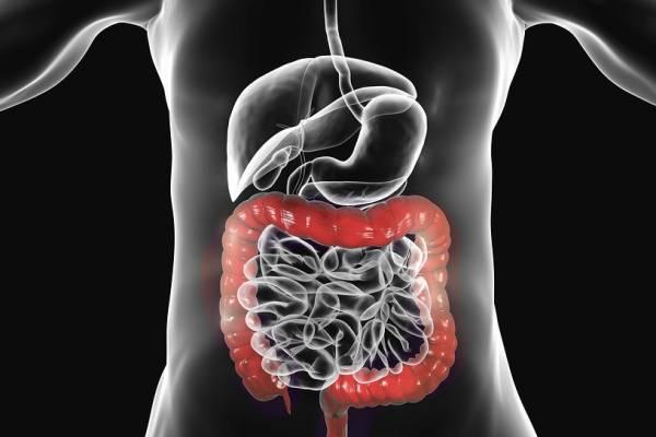 سرطان کولون و رکتوم
