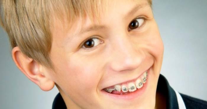 سن ارتودنسی دندان کودک