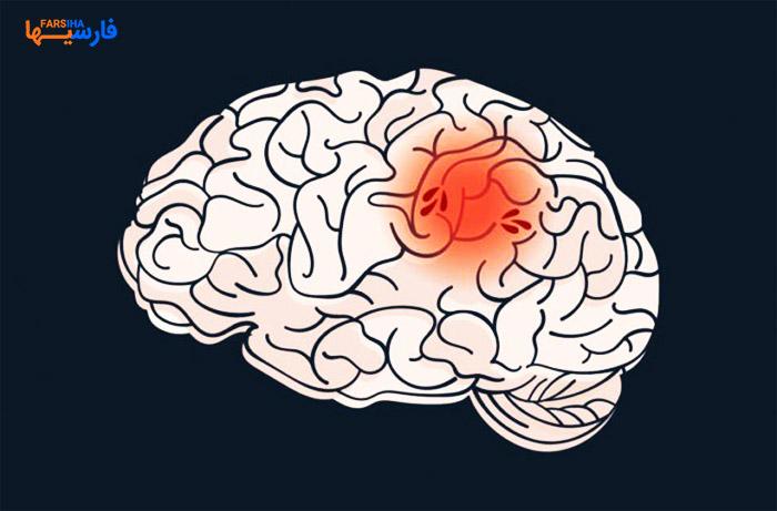 درمان سکته مغزی توسط فوق تخصص اینترونشنال و نورورادیولوژی