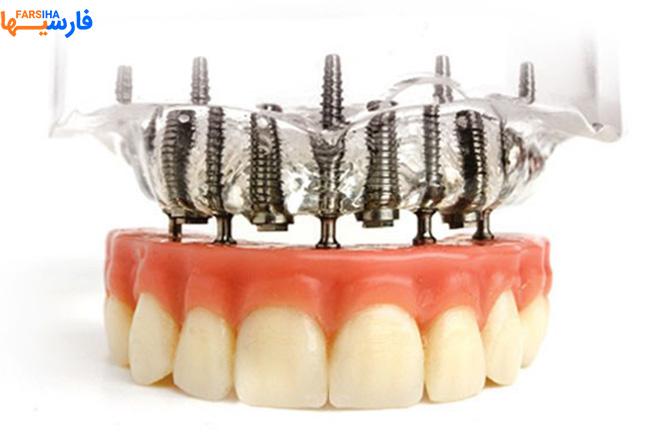 دندانپزشکی دکتر امینی در تهران