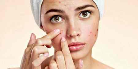 درمان جوش بعد از موم انداختن صورت با روش های ساده (1)