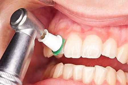 چگونه دندان سفید داشته باشیم (6)