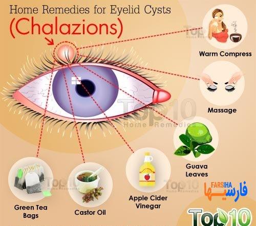 بررسی مشکلات شایع چشمی و درمانش،آبریزش چشم تا گل مژه