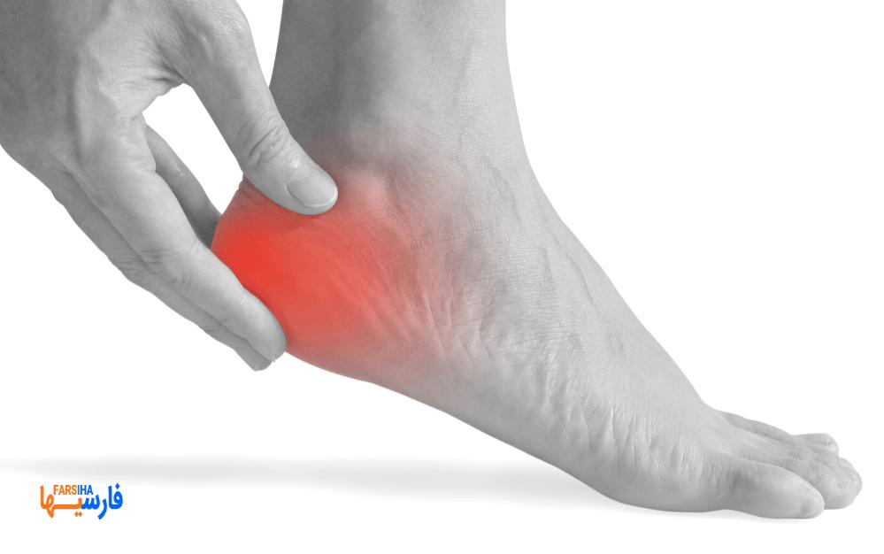 درمان خانگی برای درد پاشنه پا