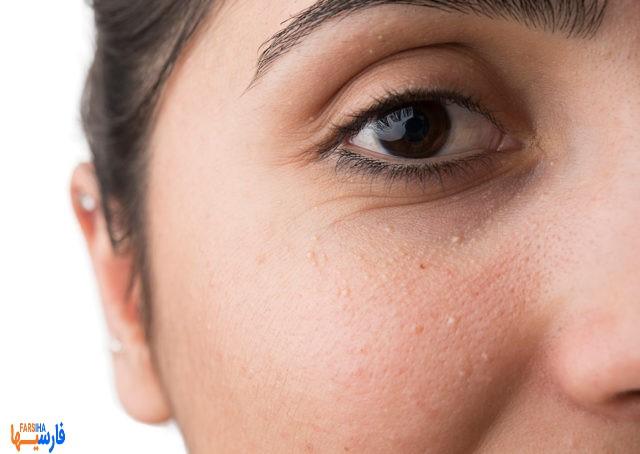 درمان جوش سر سفید صورت با این روش ها