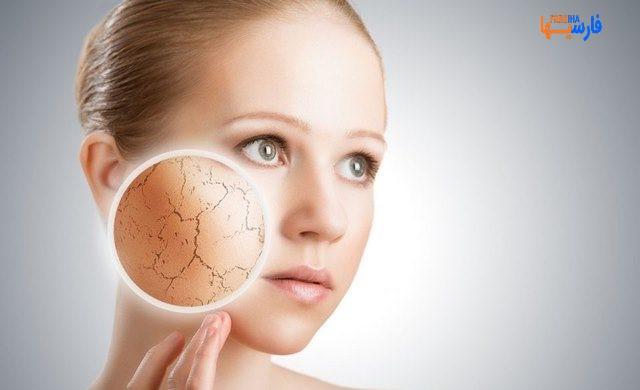استفاده از ماست برای مراقبت از پوست خشک