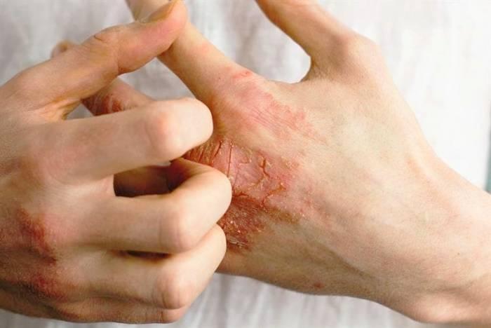 درماتیت پوست