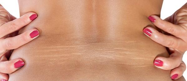 درمان خانگی برای ترک های پوستی