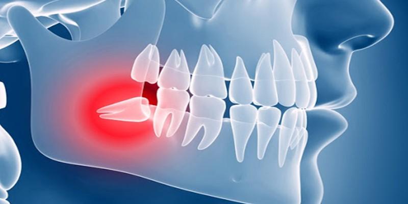 Take wisdom tooth problems seriously