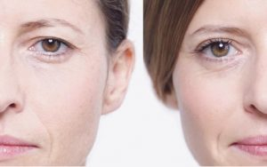 What are the home remedies for drooping eyelids?