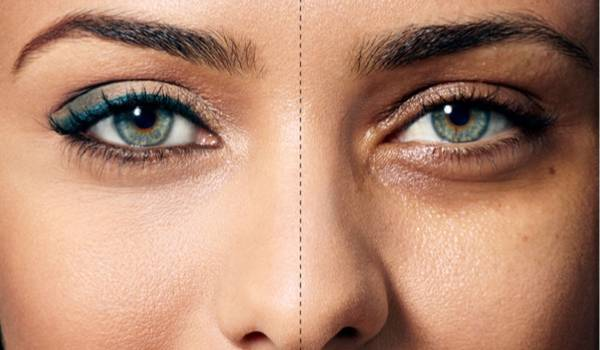 Eliminate dark circles around the eyes with a few simple home remedies