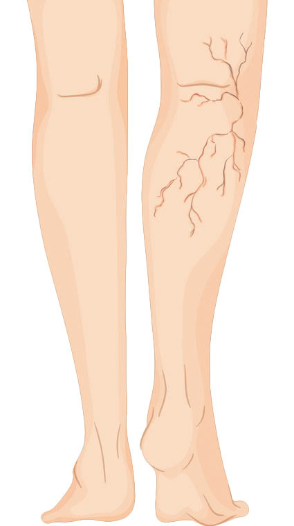 Treatment of foot varicose veins with exercise