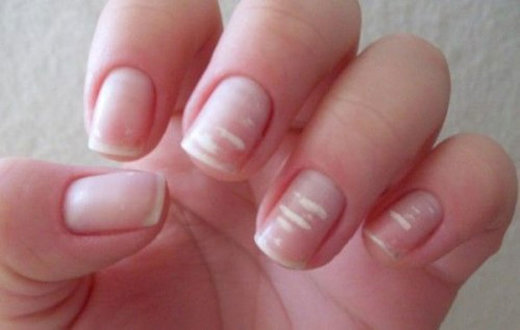 Essay on nails