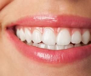 The fastest way to whiten teeth