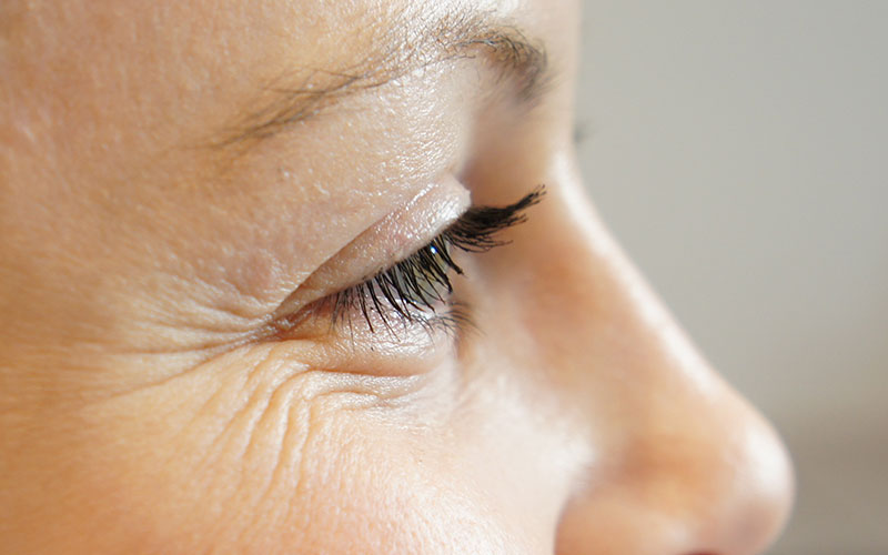 5 principles of skin care around the eyes that prevent premature aging