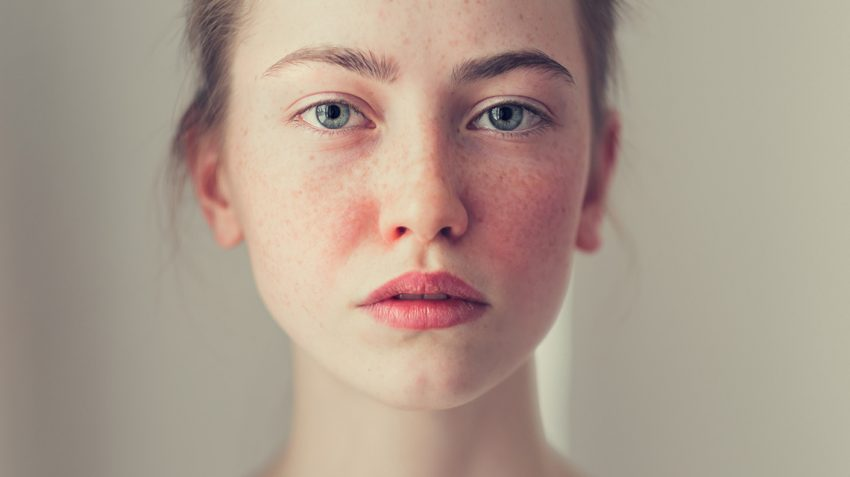 What you do not know about stubborn skin blemishes or rosacea