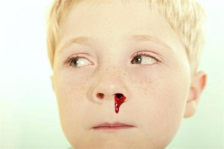 What causes nosebleeds and how is it treated?