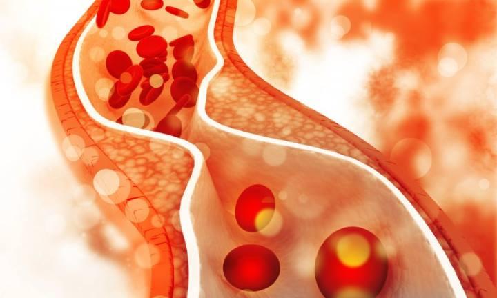 Symptoms of hyperlipidemia