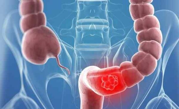 Prevention of bowel cancer with a few simple methods