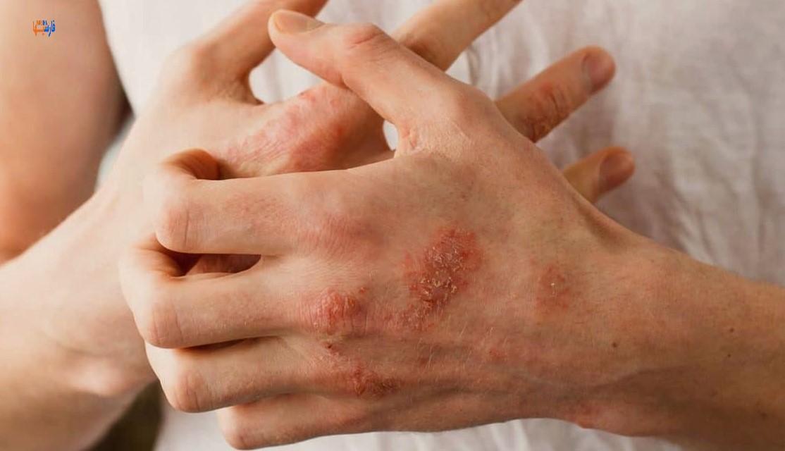 درمان خانگی برای اگزما