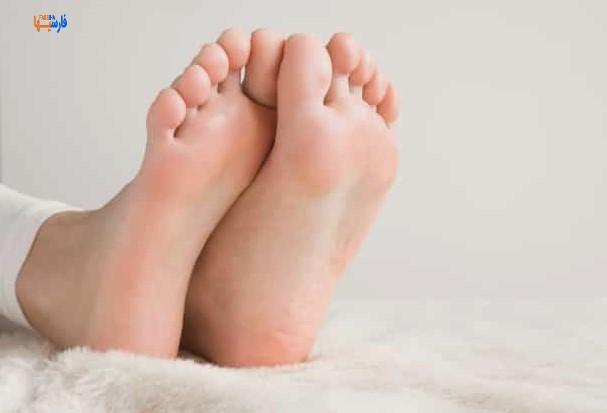 بهترین درمان خانگی برای پاشنه پا خشک و ترک خورده • فارسی ها