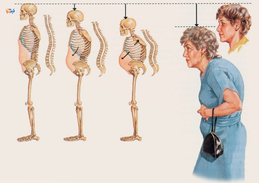 همه چیز درباره پوکی استخوان + علائم پوکی استخوان و جلوگیری از آن• فارسی ها